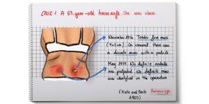 episacroiliac lipomas
