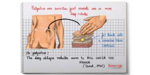 Sciatiques et lipomes épi-sacro-iliaques