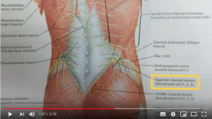 superior cluneal nerve entrapment video